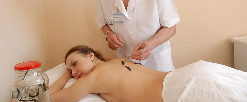 Гирудотерапия в нижнем новгороде цены