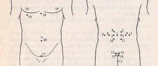 Пиявки на позвоночник: для чего ставить их на крестец, копчик, шею и грудной отдел