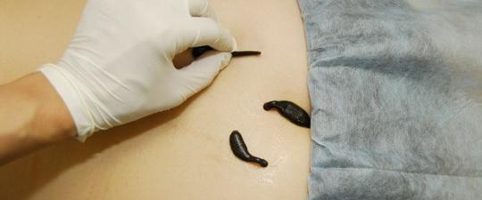 Гирудотерапия при болях в позвоночнике